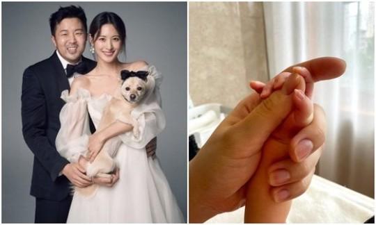 (左の写真)女優スヒョン(左)と(右の写真)生まれたばかりの娘の手を握る様子[右の写真 SNS]