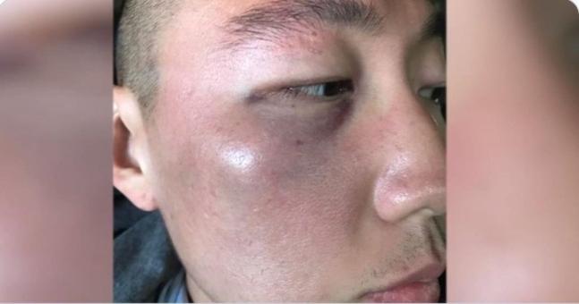 LA韓国人タウンで無差別的暴行を受けた韓国系男性。[写真 ツイッター掲示物キャプチャー]